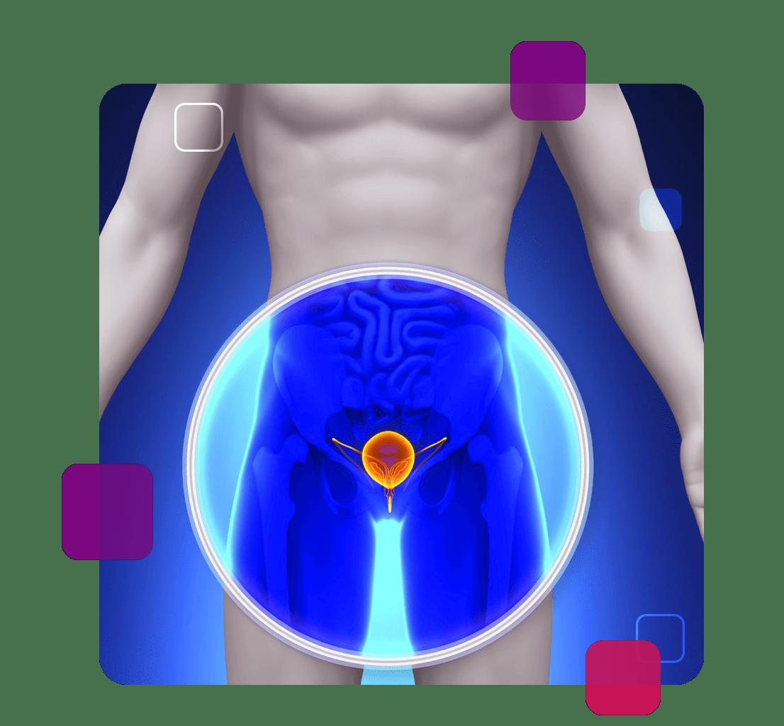 Imagem de uma próstata