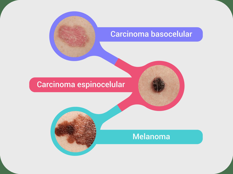 A Imagem mostra os diferentes tipos de câncer de pele