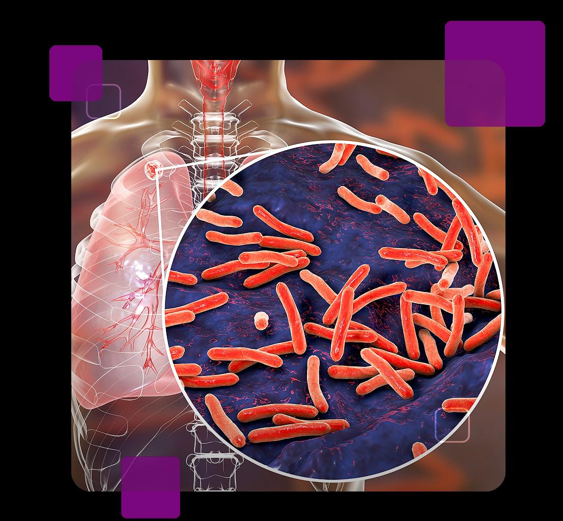 A imagem faz referência à tuberculose