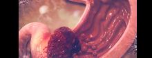 Assinaturas mutacionais impulsionadas por determinantes epigenéticos permitem a estratificação de pacientes com câncer gástrico para intervenção terapêutica