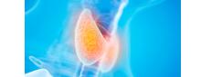 Padronização global do imunoensaio FT4: uma revisão na opinião de um especialista
