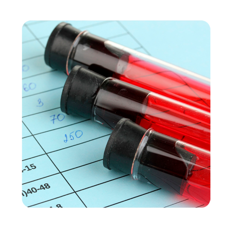 Declaração de consenso para diagnóstico e tratamento de hemoglobinúria paroxística noturna